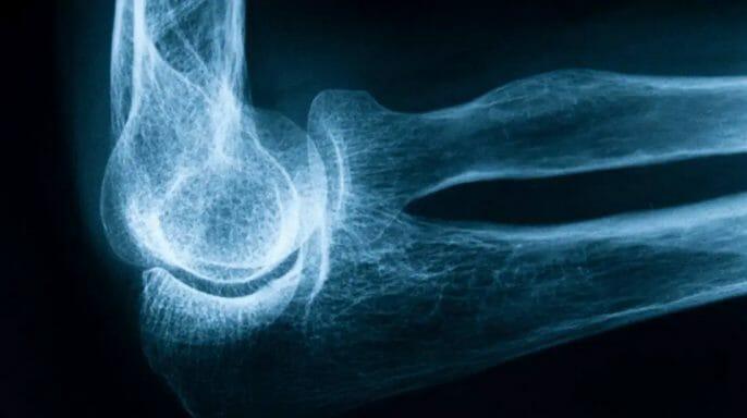 Decreases Bone loss